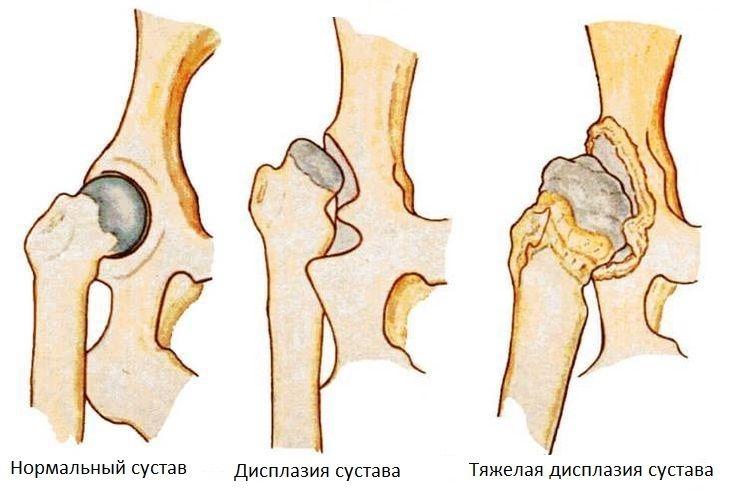 дисплазия тазобедренных суставов у собак лечение